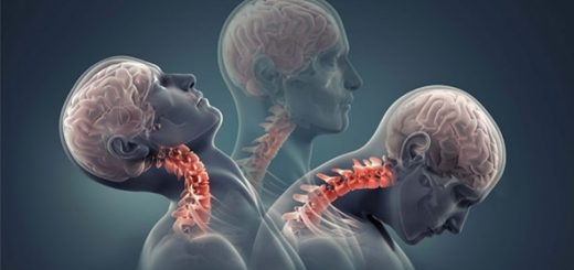 Neck-Pain-and-Back-Pain-Slip-Disc-Repair-without-Surgery